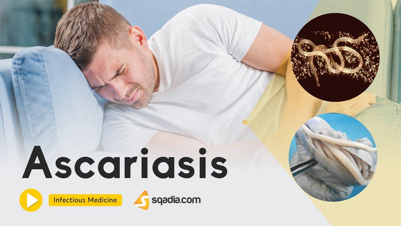 giardiasis ehetem