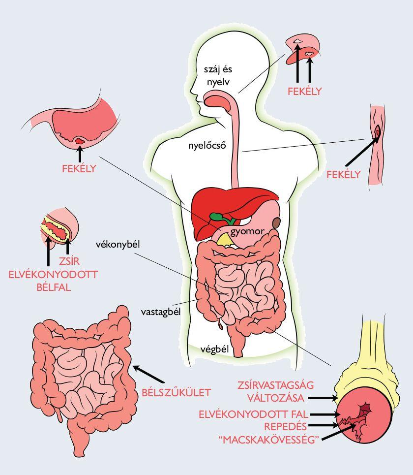 az emberi test parazitáinak megelőzésére szolgáló gyógyszer