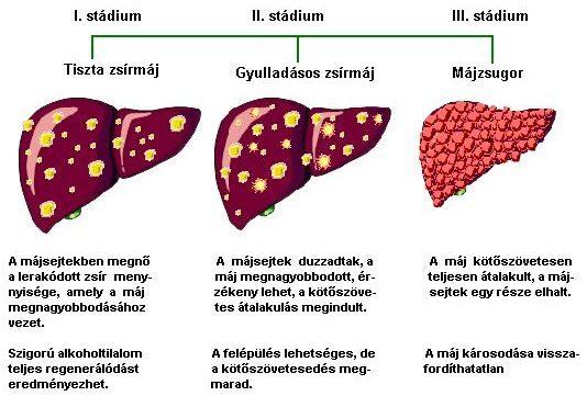 májrepedés jelei parazitát élő szervezet