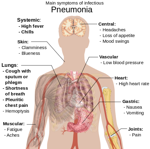 hogyan lehet leküzdeni a parazitákat a testben
