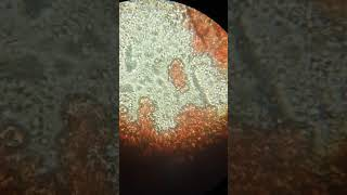 ascariasis természetes fókusz