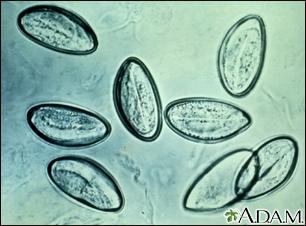 galandféreg legnagyobb mennyire veszélyesek a paraziták