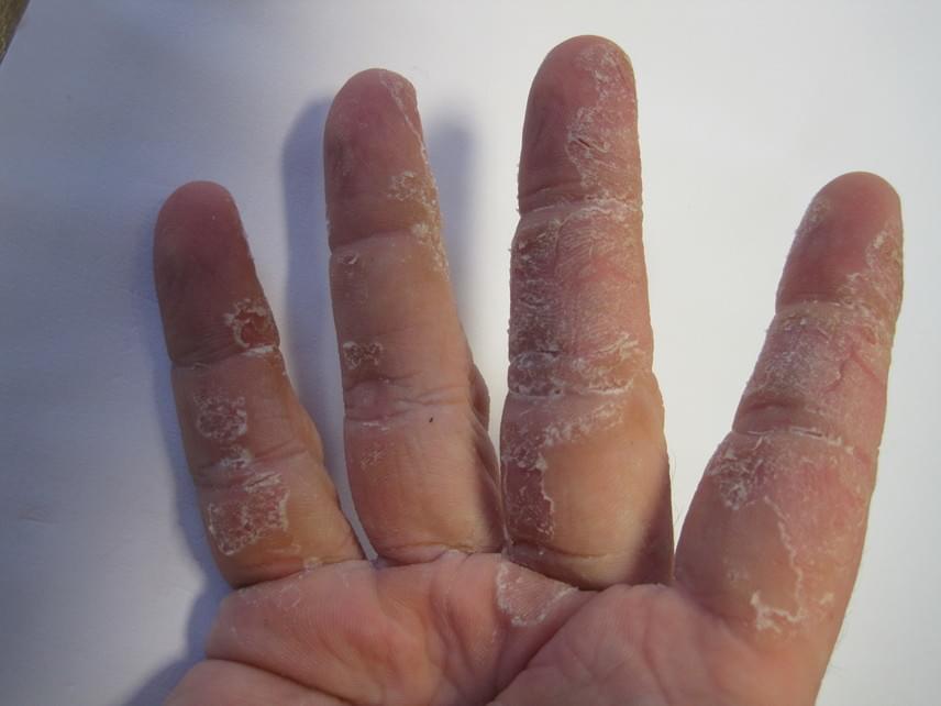 ujjak hámozása a kezeken paraziták