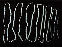 galandféreg- fertőzés útvonalai