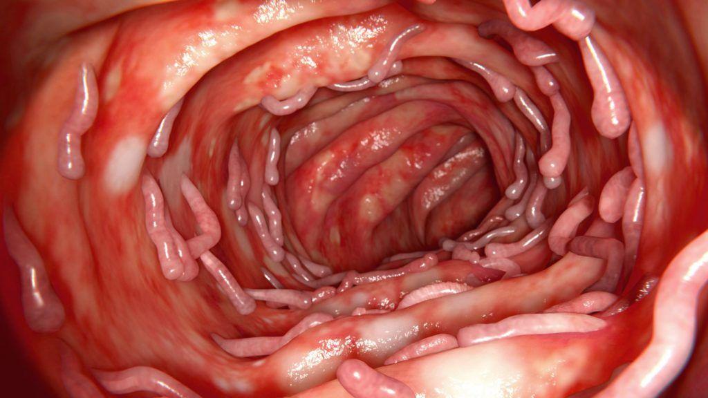 a paraziták és méreganyagok testének tisztítása a legjobb széles spektrumú féreghajtó gyógyszerek