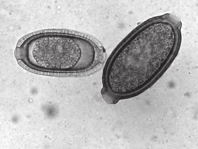 parazita trichurosis