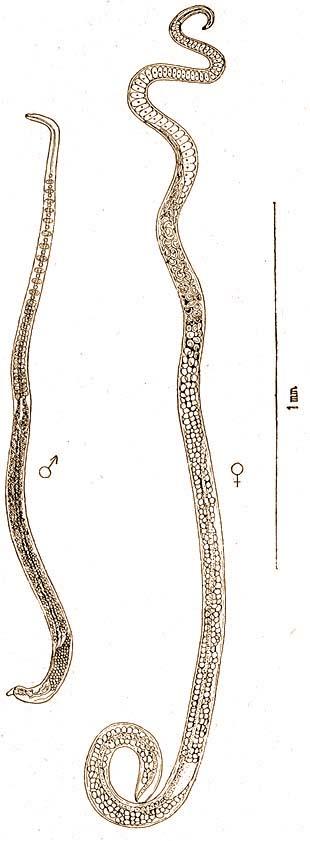 paraziták tünetei a testkezelésben