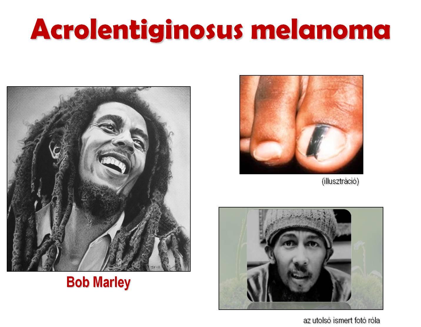 melanoma és paraziták