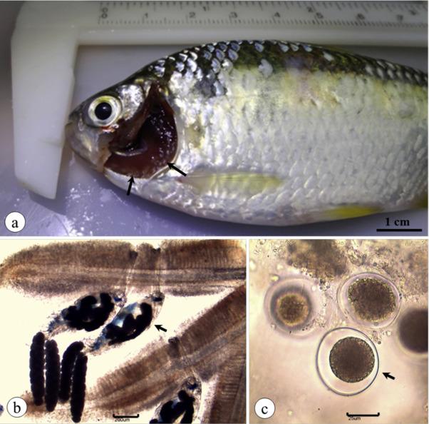 az ascariasis antroponózisra utal a parazita májrétegének jelei