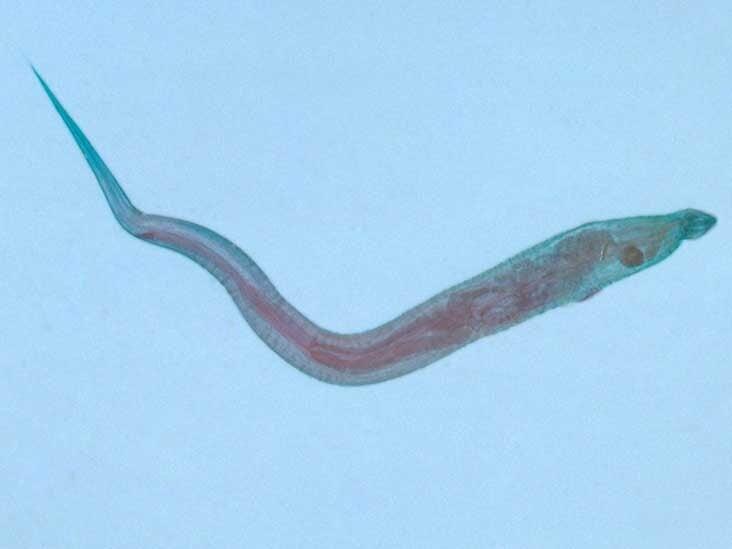 parazita a gabonaféléken bélparaziták felnőtteknél tünetek