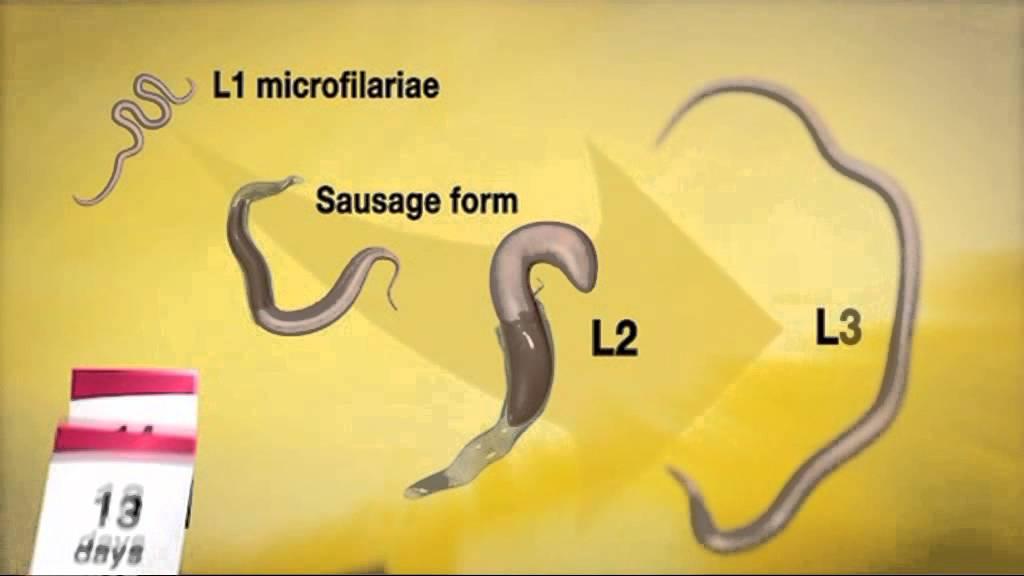 hogyan lehet megszabadulni a paraziták helmintusaitól