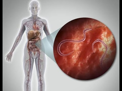 paraziták ózonterápia amikor egy parazita elindul a testben