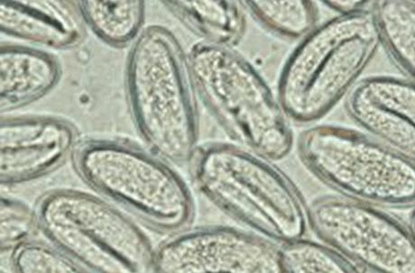 Enterobiosis veszélyes, Pinworm veszély - Oltás enterobiasis