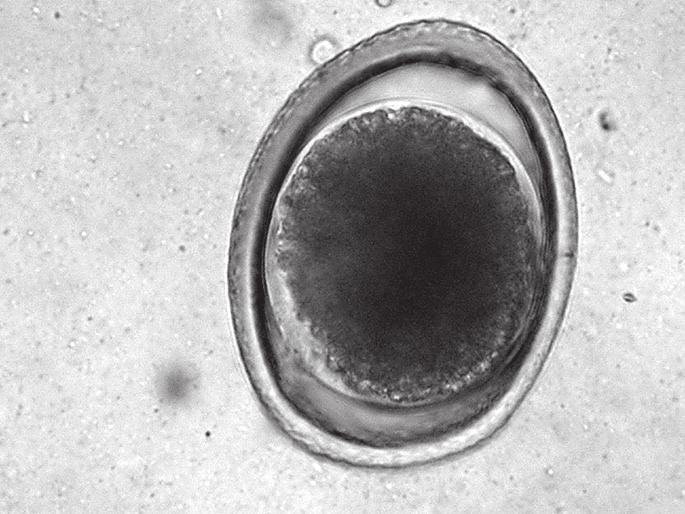 parazita trichurosis ascaris gyógymódok