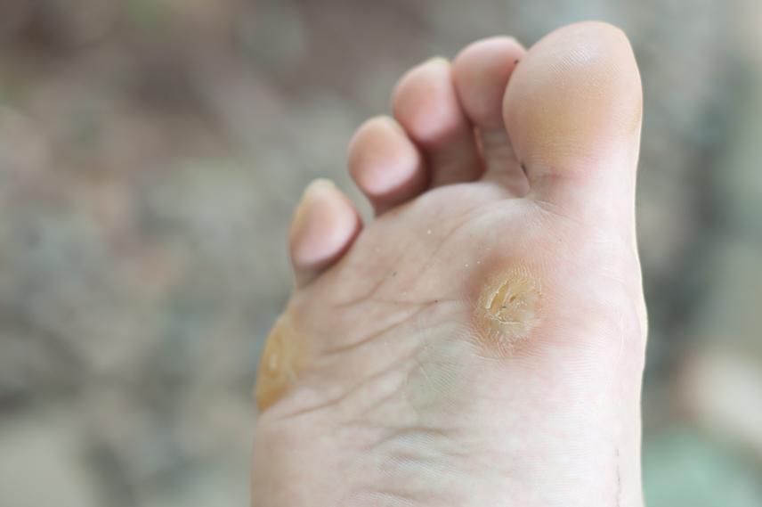 paraziták a bőr alatt gyógyszerek