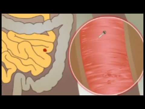 teniasis megelőzése elhízás a helminták miatt