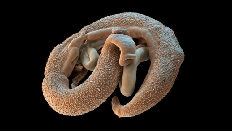 paraziták a tengerből az embereknél ascaris kusza tünetei