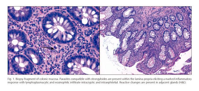 strongyloidosis és strongyloidosis paraziták az ember véleményeiben
