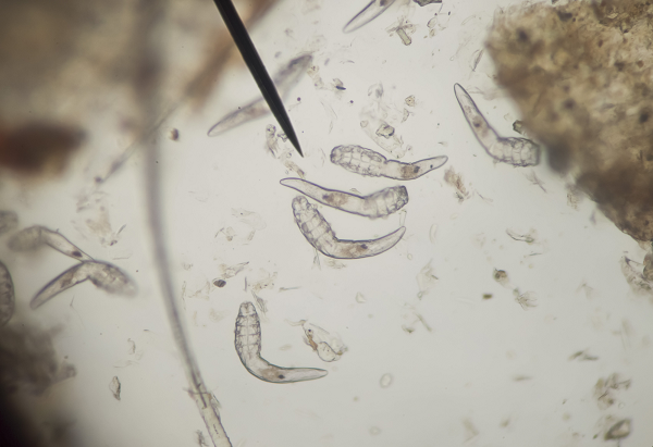 bőrparazita demodex