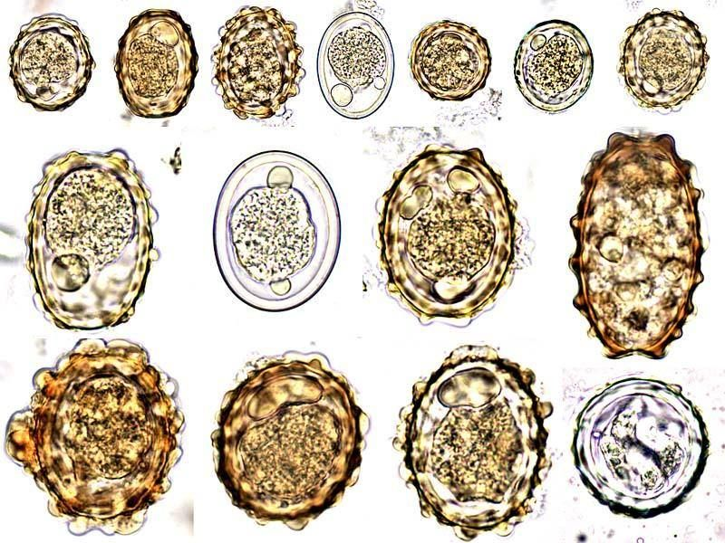 ascariasis gabonafolt
