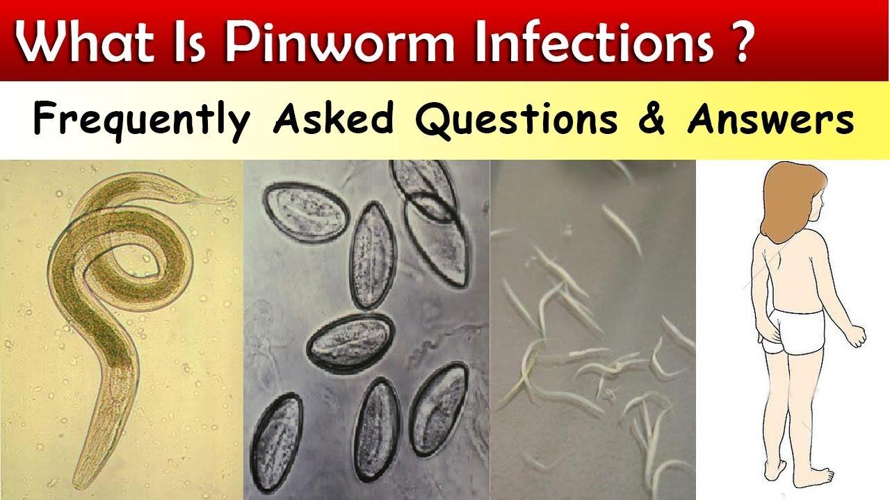 Hogy néz ki a pinworm tojás, Hogyan néz ki a pinworm. Pinworms felnőtt képekben Calaisban