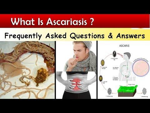 ascariasis tünetei és kezelése