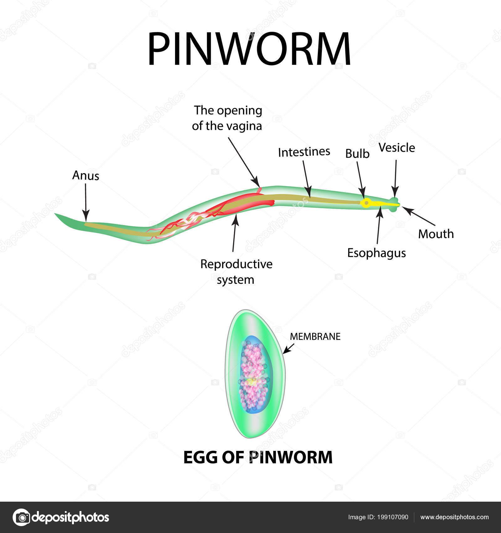 pinworms ez ijesztő