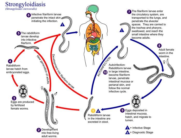 strongyloidosis és strongyloidosis miben különböznek a gömbférgek a fonálférgektől