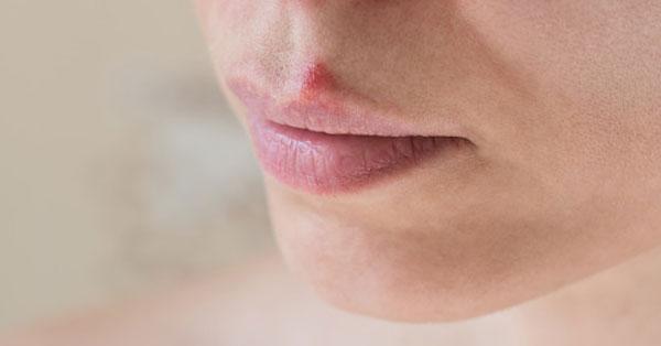 szájtrágya szaga felnőtt esetben
